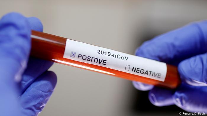 teste-coronavirus